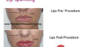 Lip Sparkling